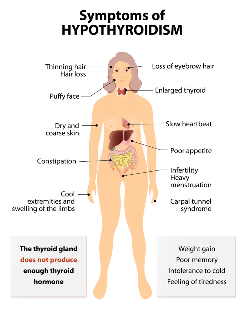 Hypothyroidism, hypothyroid symptoms