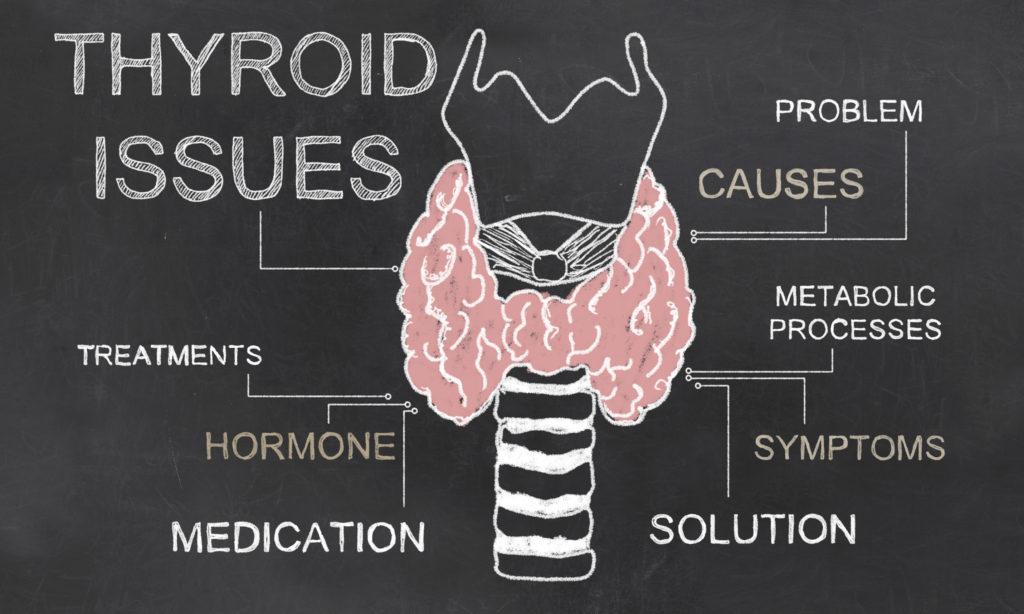 Thyroid, hypothyroid, hypothyroidism, functional medicine