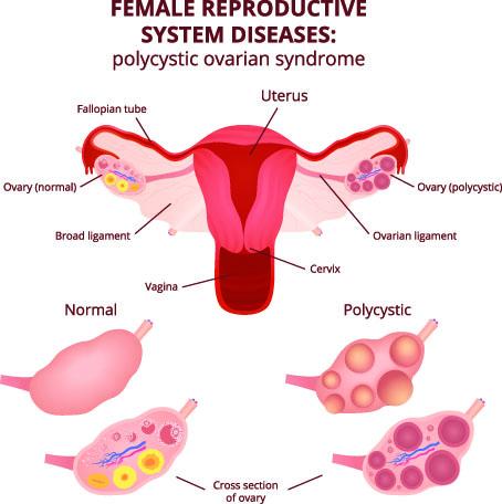 pcos, fertility, reproduction, hormone