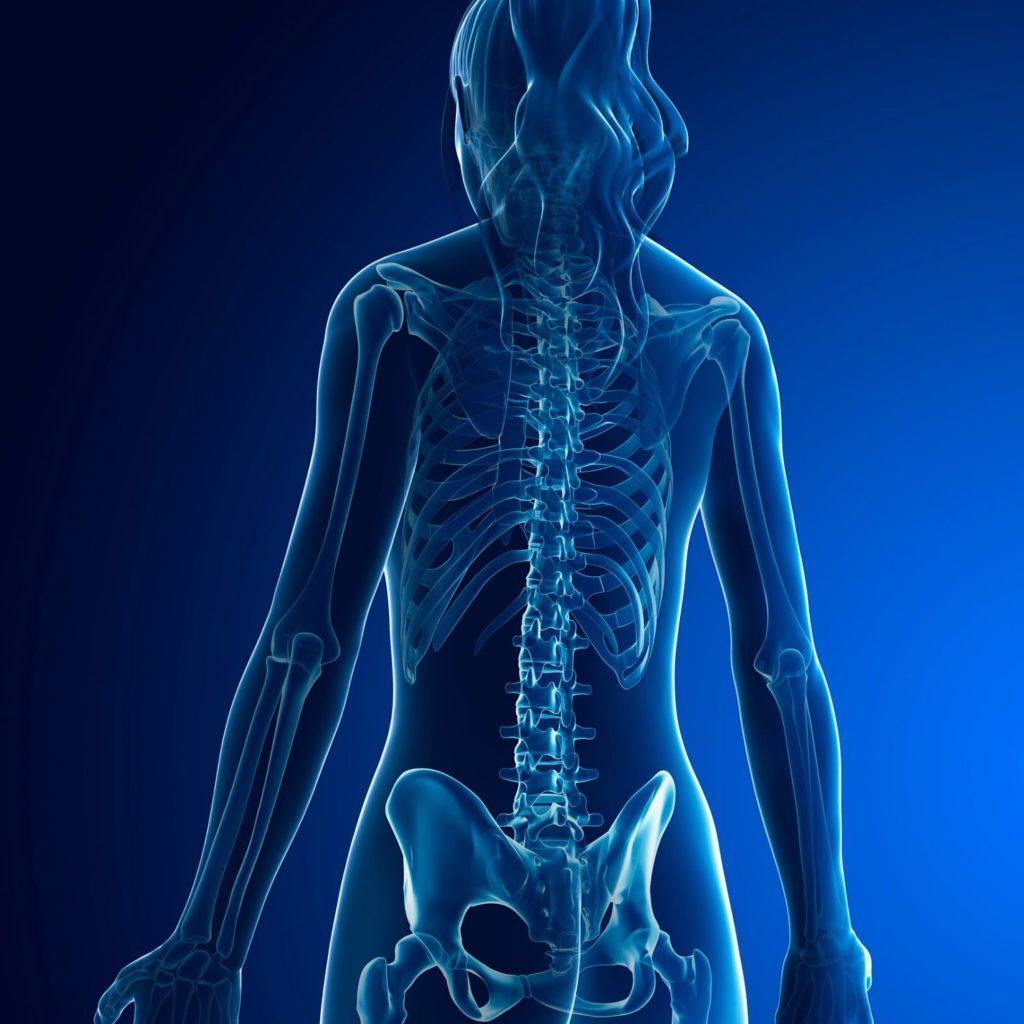 osteoporosis, calcium, magnesium, osteopenia, nutrition, bone density, functional medicine, Dr. Laura Paris